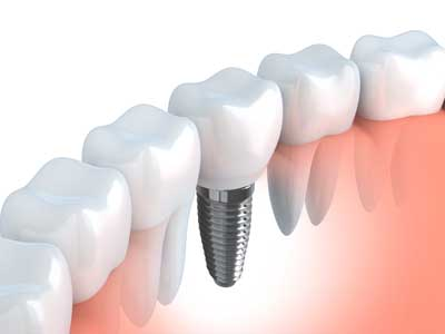 Dental-Implants-at-Silverlake-Dental-Center-in-Everett-Washington