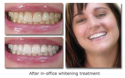 In-Office-Whitening