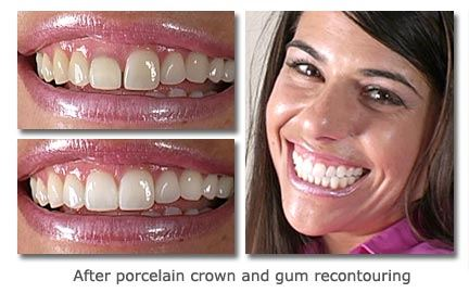 Porcelain-Crown-and-Gum-Recontouring