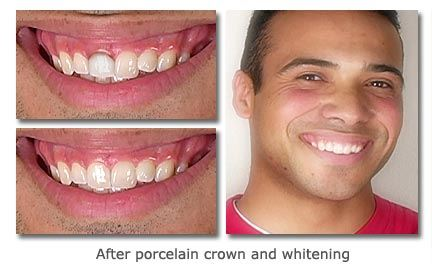 Porcelain-Crown-and-Whitening
