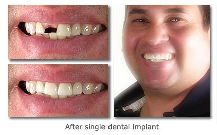 Single-Dental-Implant