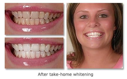 Take-Home-Whitening