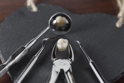 tooth-extraction-seattle-dental