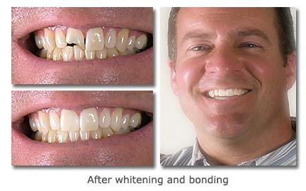 Whitening-and-Bonding