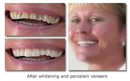 Whitening-and-Porcelain-Veneers-2