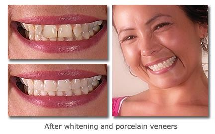 Whitening-and-Porcelain-Veneers