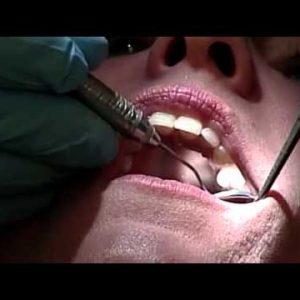 find-dental-care-seattle