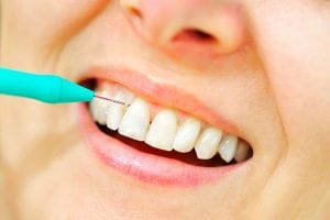 bleeding-gums-care