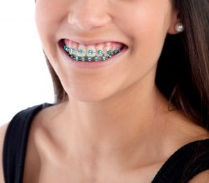 braces orthodontic
