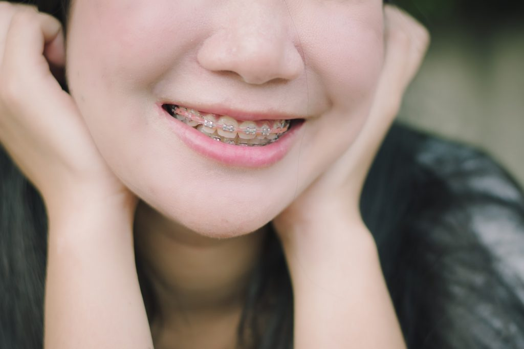 benefits and risks of orthodontic braces