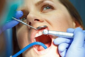 common types of orthodontic problems
