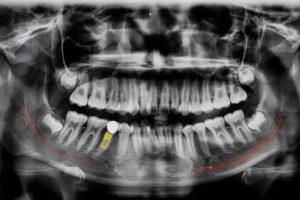 process of dental bone graft surgery