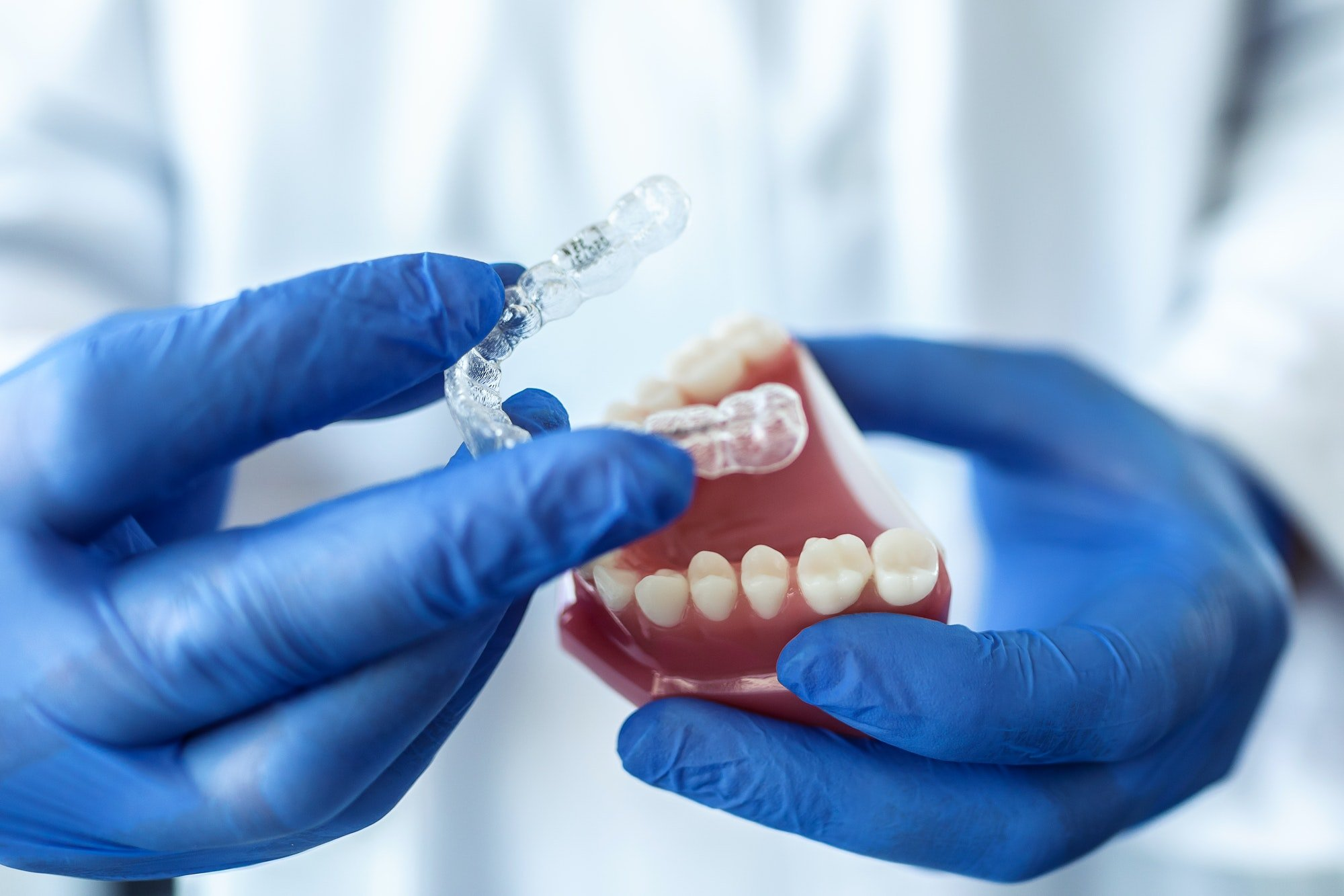 what are benefits of invisalign