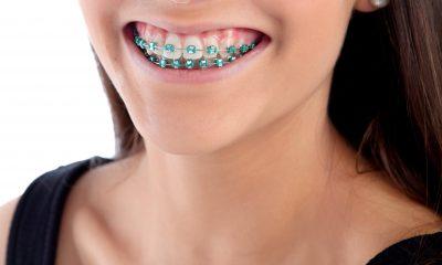 braces orthodontic